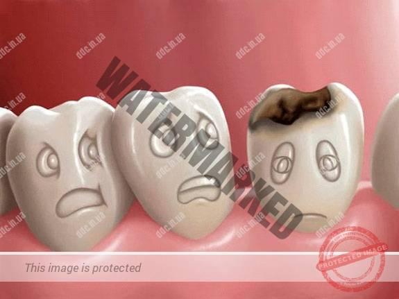 Лечение кариеса зубов и его осложнений