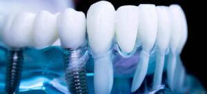 Восстановление зубного ряда с помощью имплантации