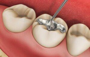 Пломба для зуба